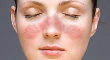 Lupus facial gracias a la wikipedia.org