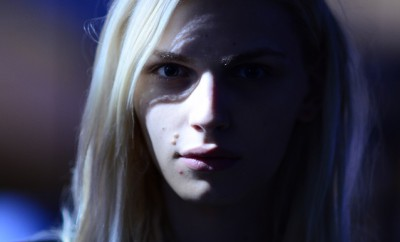 chica joven con algunos granitos de acne